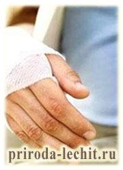 Лечение переломов костей, помощь при переломах