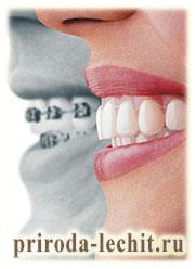 с какого возраста лучше исправлять прикус и выравнивать зубы?